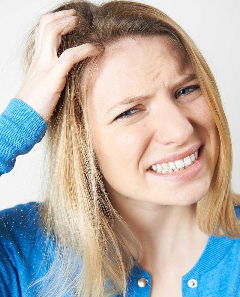 dame med tørr hodebunn blondt hår